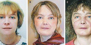La primera trasplantada de cara, satisfecha de su aspecto