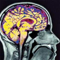 El cerebro humano está en construcción hasta el final de la adolescencia
