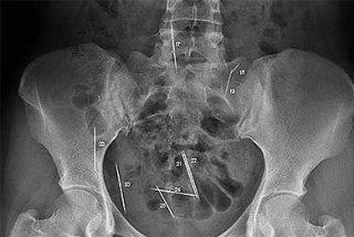 Radiografía de un crimen frustrado