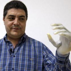 Implantan por primera vez en España una mano biónica con piel