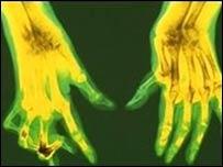 Inyección mensual contra la artritis
