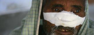 Identifican otra bacteria que causa la lepra