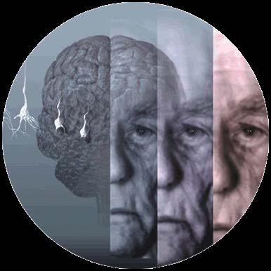 La lucha contra el Alzheimer sufre un revés