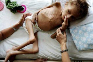 Desnutridos en Honduras