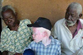 Ser albino en Tanzania te puede costar la vida