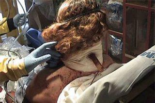 Una mujer sobrevive tras recibir una puñalada en el cuello con un cuchillo de cocina