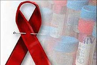 Descienden un 17 por ciento los casos de sida en España