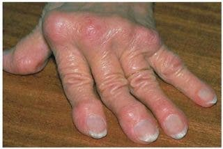 Es posible una remisión en la artritis reumatoide si se inicia el tratamiento precozmente