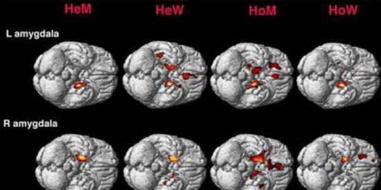 El cerebro de los gays es similar al de las mujeres