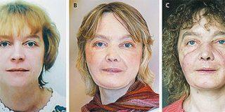 La ONT espera que las autonomías autoricen el primer trasplante de cara en España
