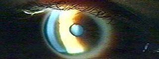 La proinsulina retrasa la pérdida de visión