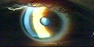 Recupera la visión gracias a un injerto de pieza dental en el ojo