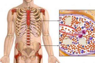La metadona podría servir como tratamiento contra la leucemia