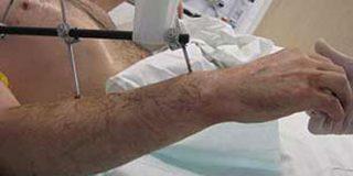 Un alemán recibe el primer trasplante de dos brazos