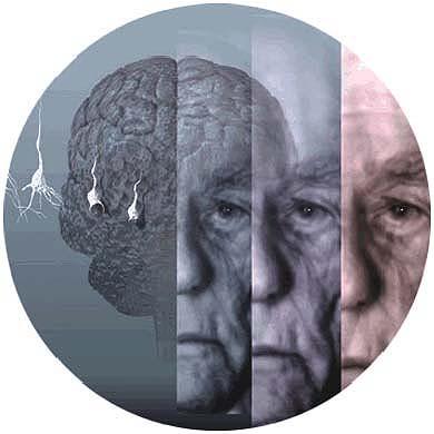 Alzheimer: enfermos sin memoria