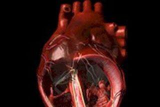Prevención de la endocarditis infecciosa