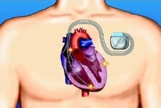 Novedades en terapia de resincronización cardiaca