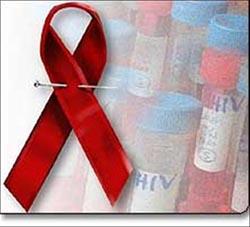 Sanidad recorta un 10% los presupuestos para la prevención del sida