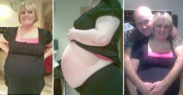 ¡Todos pensaban que estaba embarazada pero el niño era un quiste de 7 kilos!