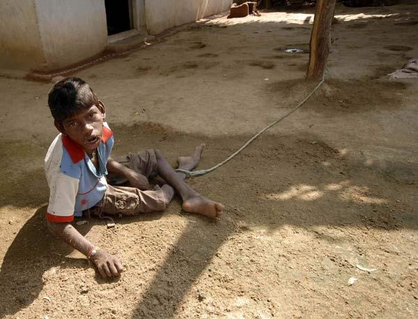 Un niño indio vive atado a un árbol para evitar que se escape de casa
