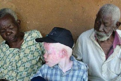 Hasta 50.000 euros por un albino desmembrado
