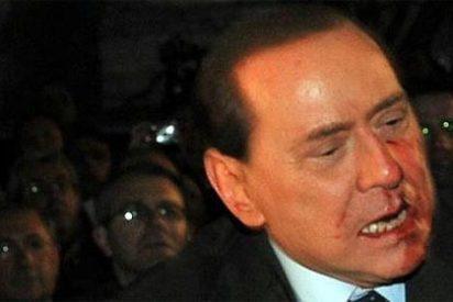 Berlusconi agredido y ensangrentado en un mitin