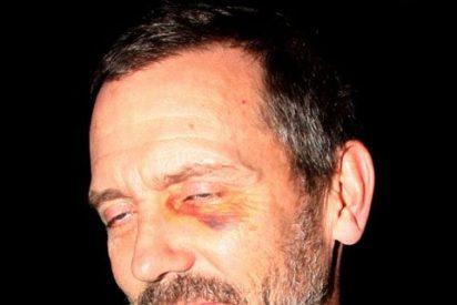 El extraño ojo morado del doctor House