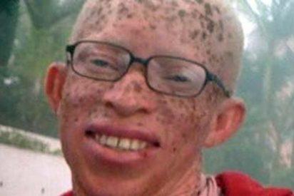 Inmigrante albino obtiene estatuto de refugiado en España
