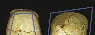 Los homínidos de Atapuerca cuidaban de los niños con enfermedades congénitas