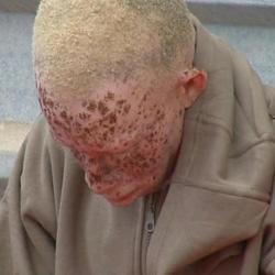 Un inmigrante albino llegado en patera pide asilo por el color de su piel