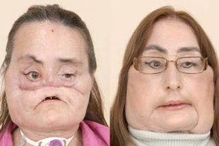 Connie Culp muestra su nuevo rostro tras el mayor trasplante de cara realizado hasta la fecha