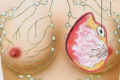 El cáncer de pecho podría curarse con el frío extremo