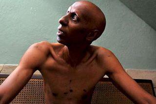 La salud de Fariñas, en huelga de habre desde hace un mes, empeora gravemente por una infección