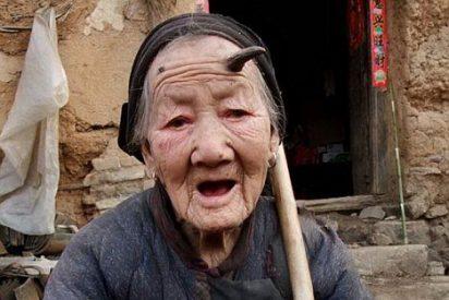 A una anciana de 101 años le sale un cuerno de seis centímetros en la frente
