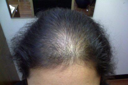 Un raro trastorno de pérdida de pelo ya tiene su gen causante