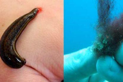 Cuatro animales repugnantes que se afincan en el cuerpo humano