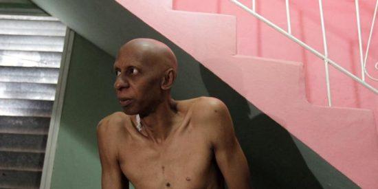Empeora el estado de salud de Fariñas