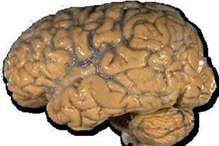 Descubren cómo el cerebro decide qué comer