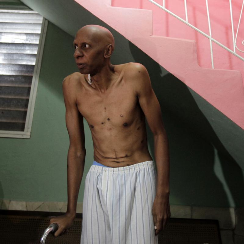 """Uno de los médicos que trata a Fariñas advierte que está """"al límite"""""""