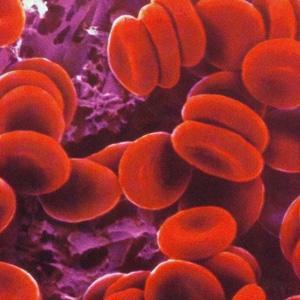 Usan nanoimanes con éxito para eliminar patógenos de la sangre