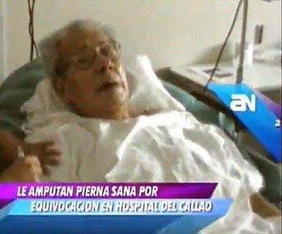 Cirujanos amputan la pierna equivocada y Colegio de Médicos de Lima les absuelve