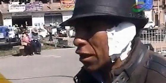 Un alcalde peruano le muerde la oreja a opositor