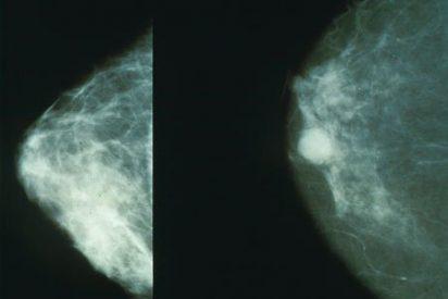Las recaídas en cáncer de mama han bajado hasta el 25%