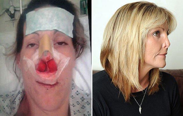 Sin media nariz por culpa de una mala operación de estética