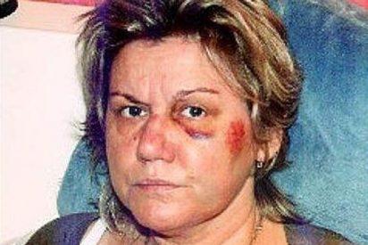 Apaleada por la policía por no recoger la caca de su perro