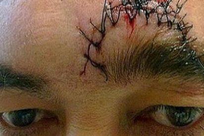 16 puntos de sutura tras una pelea por un cigarro