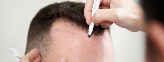 ¿Cómo afectan los genes a la alopecia?