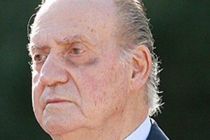 El Rey Don Juan Carlos aparece con un ojo amoratado durante la visita del presidente Sebastián Piñera a la Zarzuela