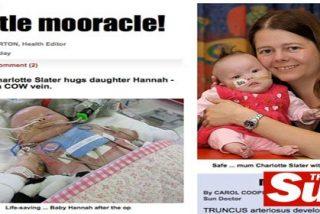 Un bebé sobrevive gracias al transplante de la vena de una vaca
