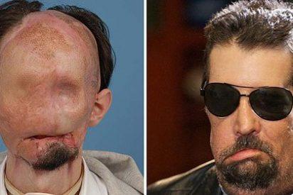 El joven que perdió la cara y recibió trasplante facial completo, ya puede oler